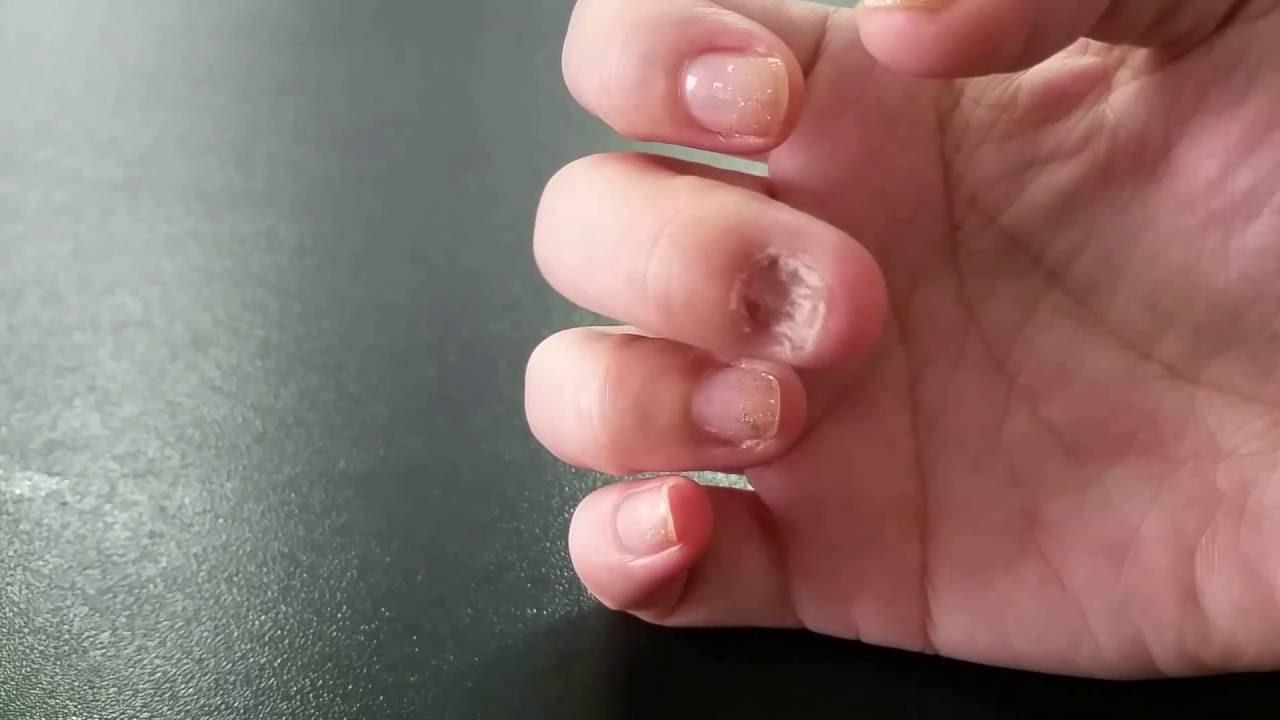 Extreme Nail Biting