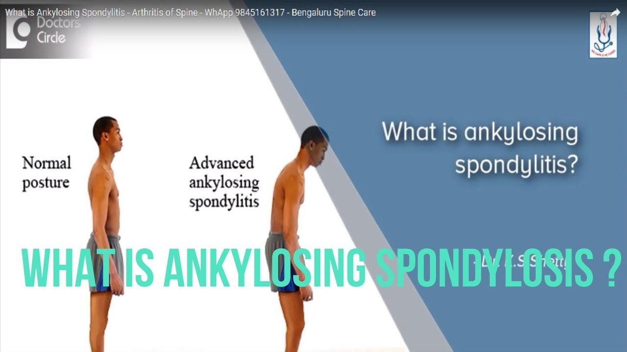 What Kind of Arthritis Is Ankylosing Spondylitis What Kind of Arthritis Is Ankylosing Spondylitis new pics