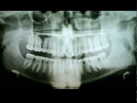 X Ray what do the Dentist see