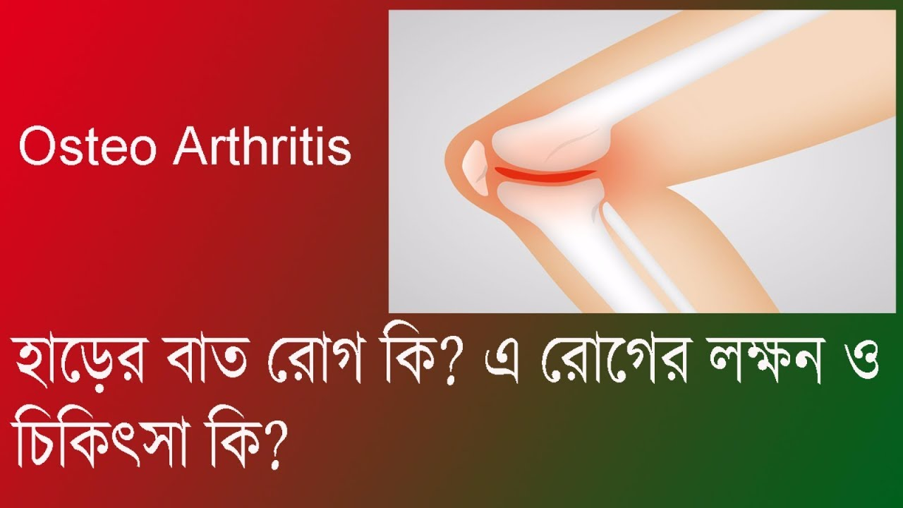 symptoms and medical treatment of osteoarthritis