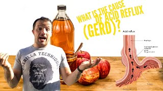 What Is The Cause Of Acid Reflux (GERD)   #AskMikeTheCaveman Part 12