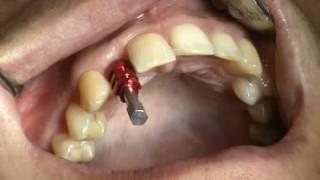 Имплантанты системы Штрауман-Prosthetics 1 chapter1(http://dentadent.ru/ Видео 1. Учебное видео студенту хирургического имплантат зубного протезирования, имплантаты..., 2016-07-18T08:39:21.000Z)