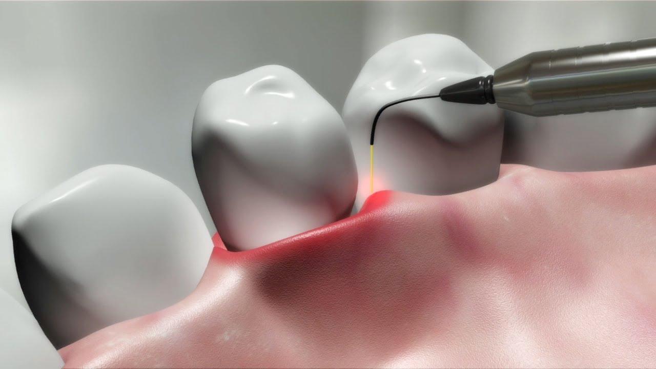 Image result for dental laser