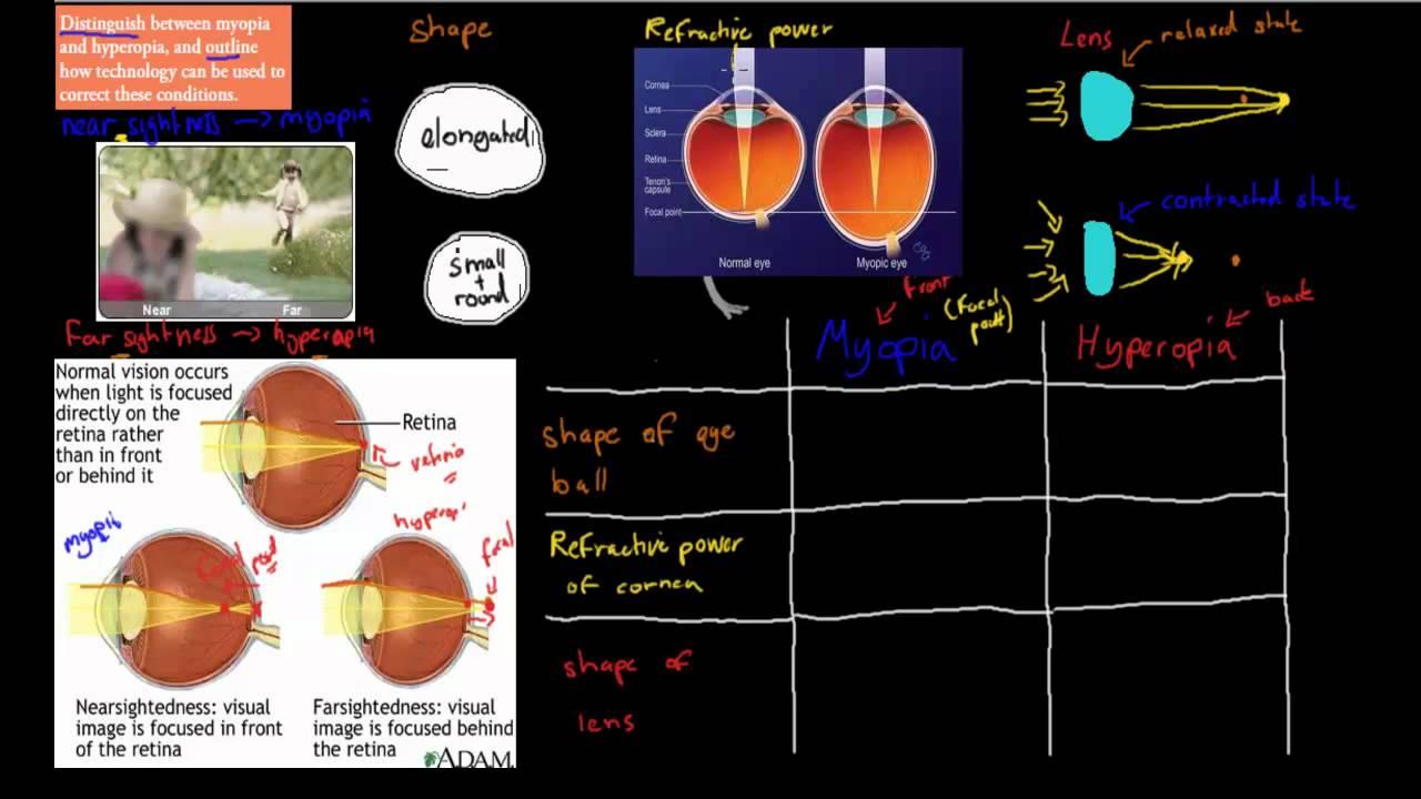 myopia hyperopia gyakorlása)