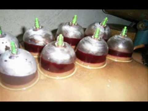 Hijama urdu - a comprehensive introduction - YouTube