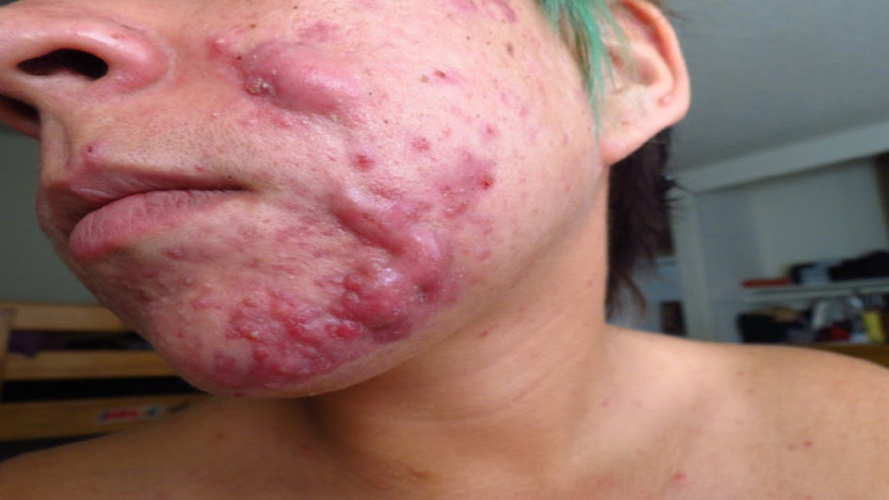 Adult cyst acne