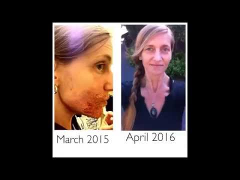 How Erin Waage Holistically Beat Candida  Cosmic Awakening Show