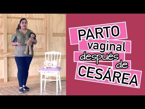 Parto Vaginal después de Cesárea - PVDC - Parto Humanizado