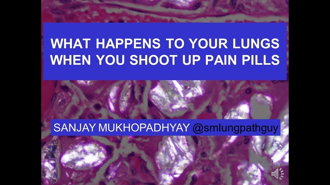 What happens to your lungs when you shoot up pain pills