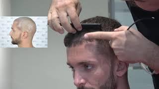 ASMED - Dr. Koray Erdogan - 2300 Grafts Manual FUE Hair Transplant Result #hairtransplantturkey