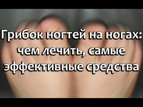 Комплексная схема лечения грибка ногтей на ногах