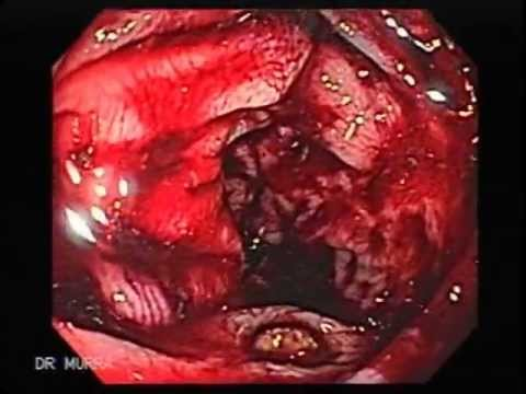 Colonoscopia Sangrado Diverticular