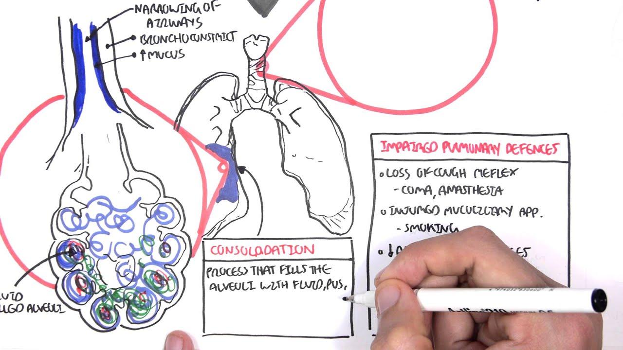medium resolution of lobar pneumonia diagram