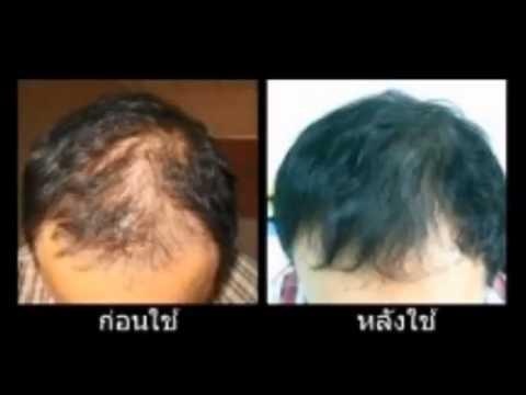 เซรั่มมะหาดเห็นผลงานวิจัยสมุนไพรไทย100%,แชมพูที่ดีที่สุด,