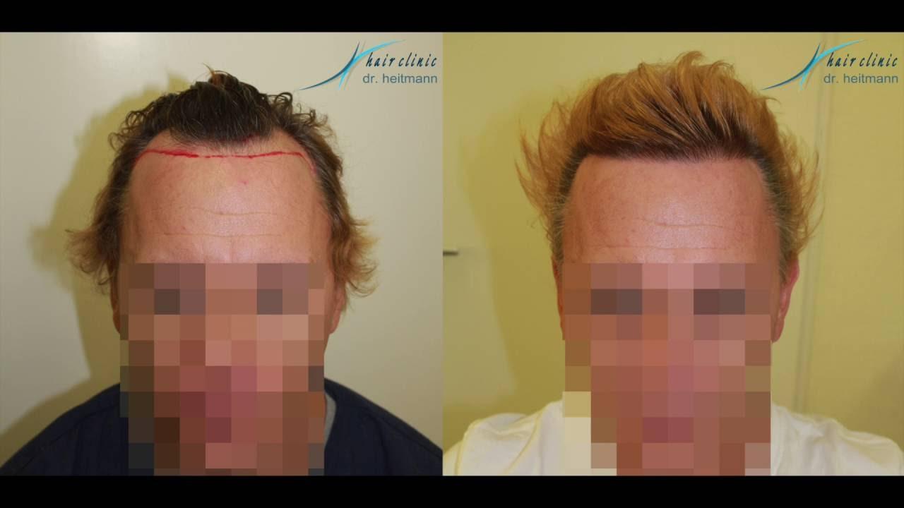 Haartransplantation Haarverpflanzung FUE Dr. Lars Heitmann
