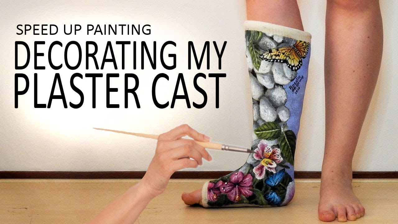 Painting My Plaster Cast 2 Butterflies On Leg Time Lapse Art