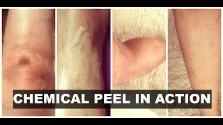 Lactic Acid Peel I Lactic Acid Lotion| Chemical Peel on Legs