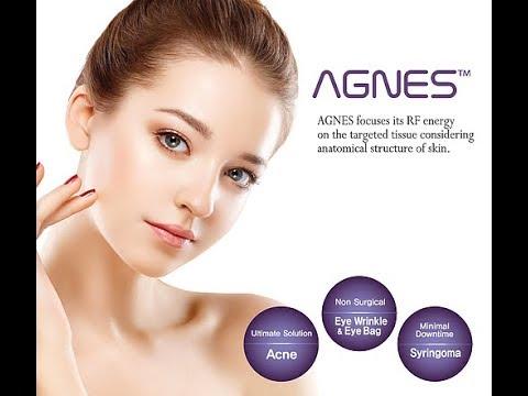 AGNES - revolutionary RF treatment for eyebags and acne