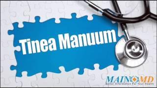 Tinea Manuum ¦ Treatment and Symptoms