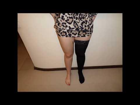 Операция по удалению вен на ногах  Отзывы пациента