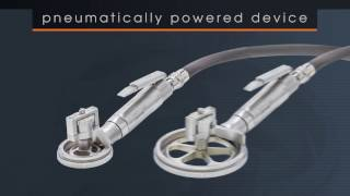 Exsurco – Amalgatome SD Overview