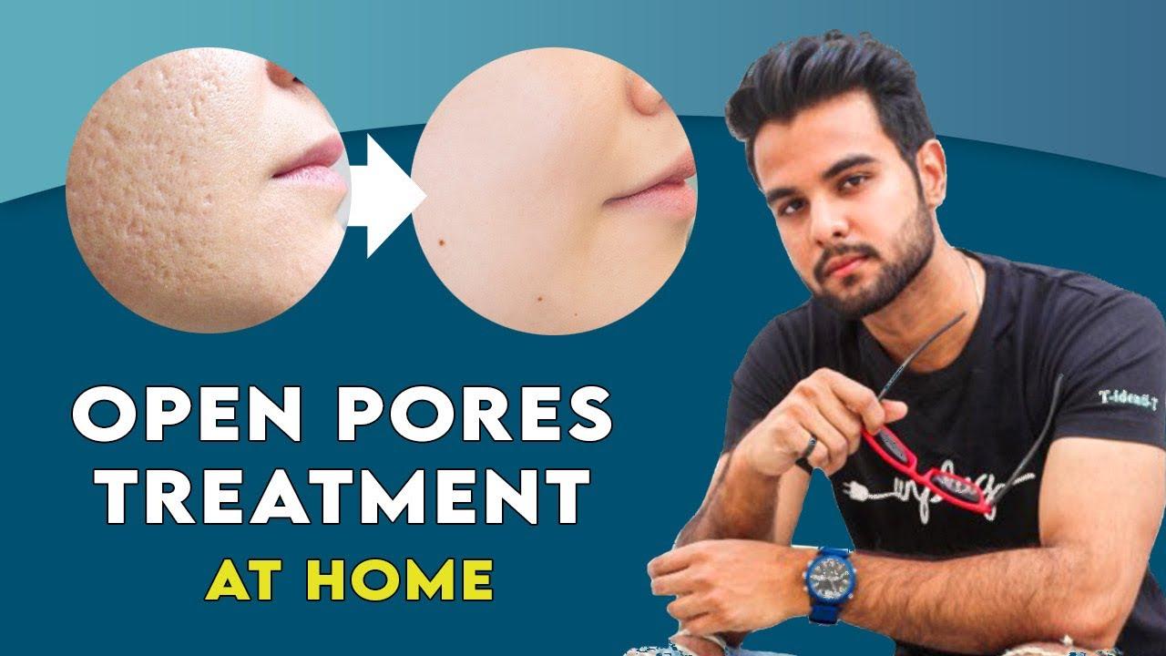 Open pores treatment at home |  open pores home remedy | Hindi