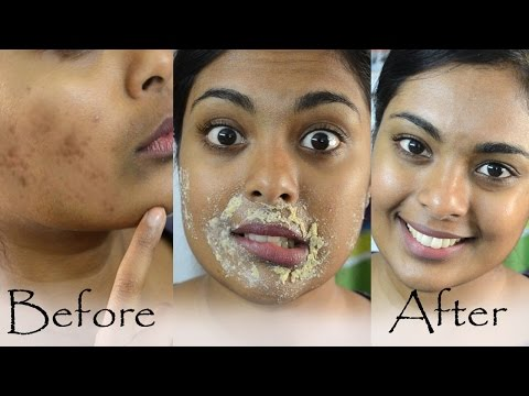 How To Get Rid Of Hyperpigmentation, Dark Upper Lip, Dark Spots