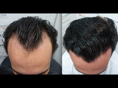 Finasteride Not Working