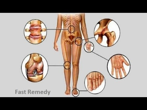 10-home-remedies-for-arthritis-and-joint-pain