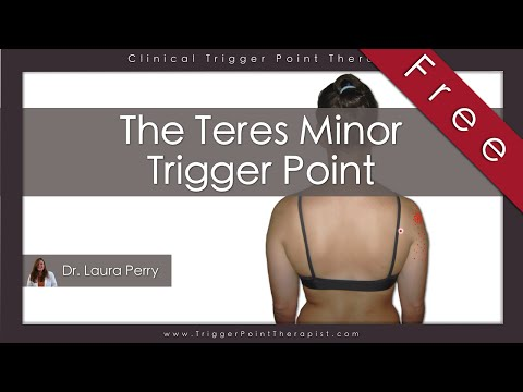 The Teres Minor Trigger Point (Free Full Video)