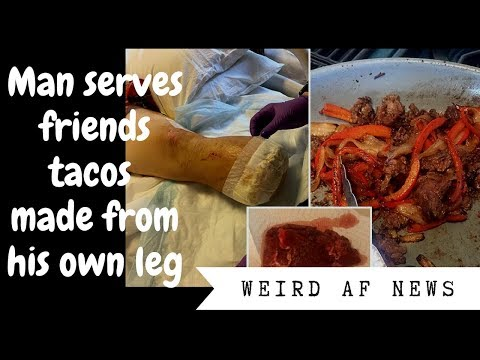 Guy served friends tacos made from his own amputated leg meat