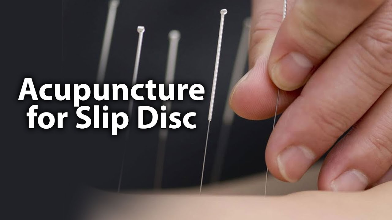 Cervical and Slip Disc Acupuncture | Body n Soul | Part 1 ...