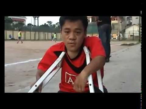 ( P.2 ) Nguyễn Sơn Lâm -- Thí sinh khuyết tật  VN Idol 2010