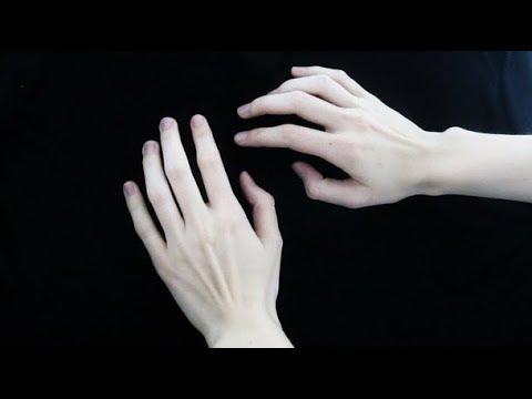 Первые признаки и симптомы рака кожи. На фото опухль