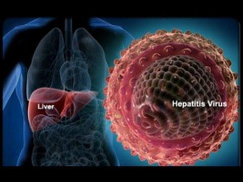 Как уменьшить холестерин в крови в домашних условиях
