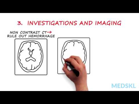 Neurology – Hemiplegia, Hemisensory Loss (With or Without Aphasia): By Ted Wein M.D.