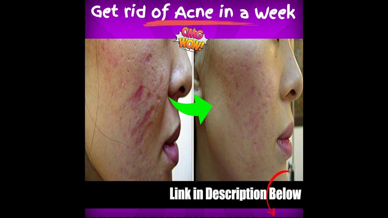 Acne Scars Removal Gel Mederma Gel For Scars Acne Scars Pimple