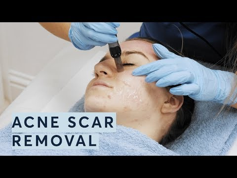 Acne Scar Removal  @ Pulse Light Clinic London
