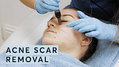 hqdefault - Acne Scar Removal Surgery London