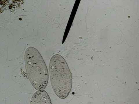 Paramecium Caudatum Under A Microscope paramecium at 100x - Y...