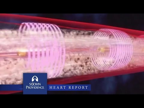 Unique Clot Busting Device Used to Treat Pulmonary Embolisms