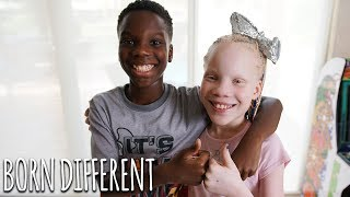 My Twin Sister Has Albinism | BORN DIFFERENT