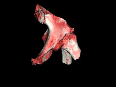 Перелом костей голени со смещением и без – закрытый и