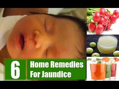 Effective Home Remedies For Jaundice YouTube - Best home remedies for jaundice its causes and symptoms