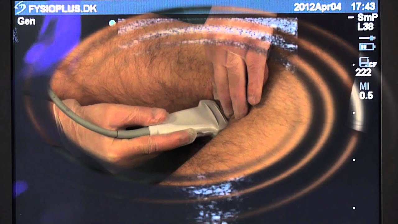 behandling mot impotens