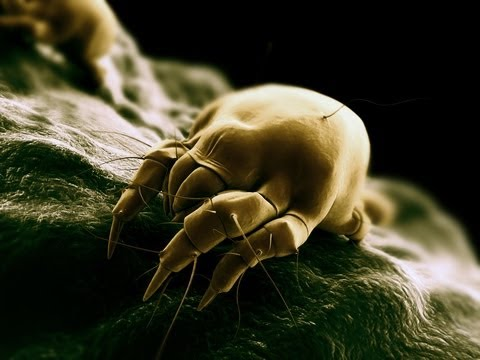 Dust Mites: Allergies & Asthma