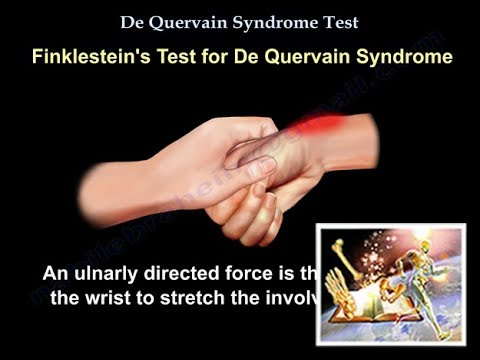 De Quervain Syndrome Test , Everything You Need To Know , Dr. Nabil Ebraheim