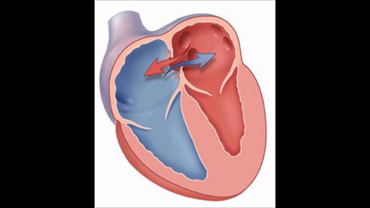 Дырочка в сердце у новорожденного