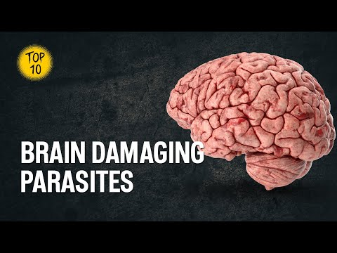 Top 10 Parasites That Can Damage Your Brain