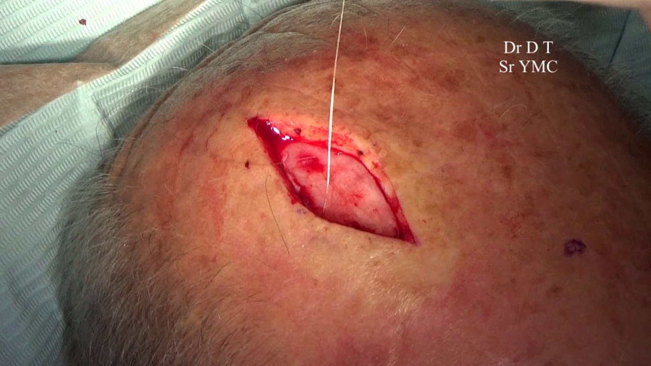 Skin Cancer On The Scalp Surgical Excision Youtube